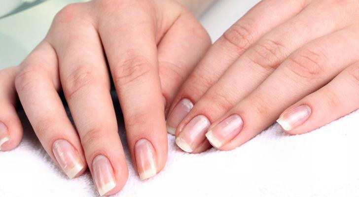 Как сделать чтобы быстро росли ногти за неделю 734
